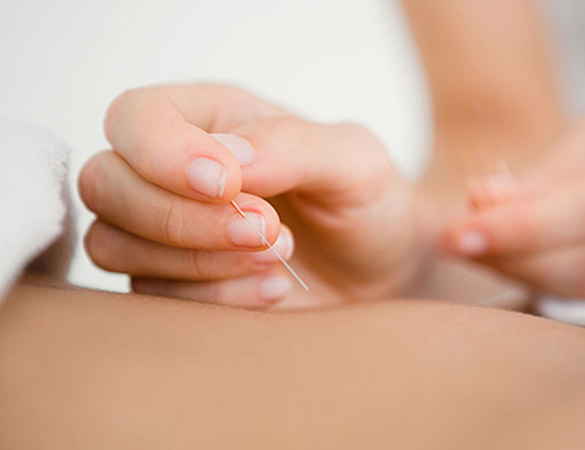 Back In Health Osteopathy Singapore SG Services – Dry Needling sml